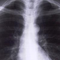 Megváltoztatják a tüdőszűrés szabályait